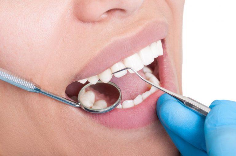 Protez Diş Bakımı Nasıl Yapılır